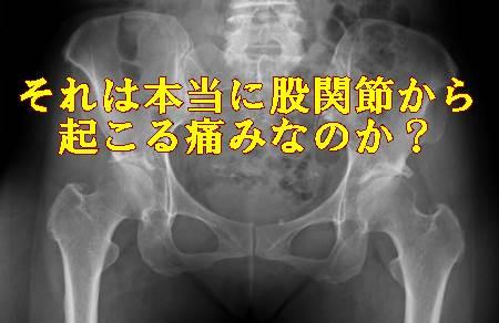 それは本当に股関節から痛みなのか?