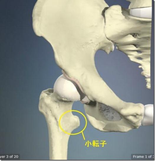 股関節痛み原因治療 小転子4.5