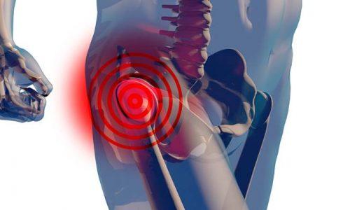 股関節痛の歩行時における荷重と抜重