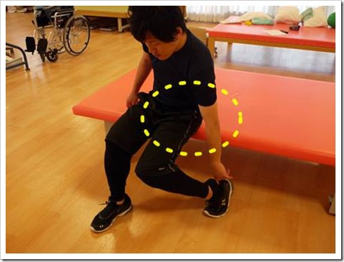 人工股関節置換術人工骨頭置換術脱臼肢位2