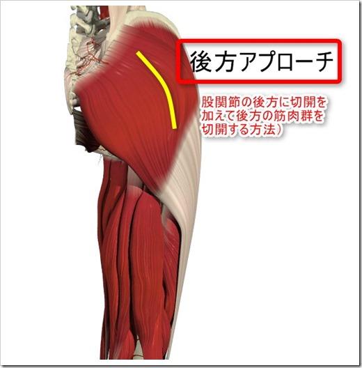 位 人工 骨頭 置換 術 禁忌 肢 THA(人工股関節置換術)の禁忌肢位 (前方アプローチ)