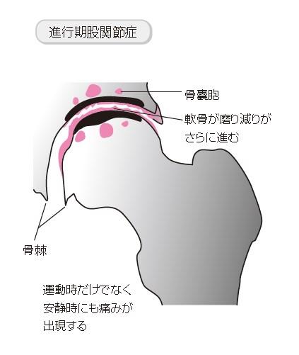 股関節 骨嚢胞(こつのうほう)5
