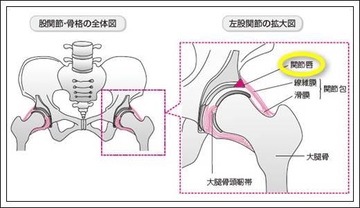 股関節唇の解剖と機能、その役割とは?