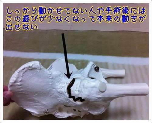 股関節のインピンジメントはさみこみ2