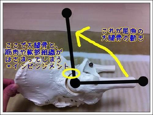 股関節のインピンジメントはさみこみ3