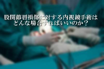 股関節唇損傷に対する内視鏡手術はどんな場合すればいいのか?3