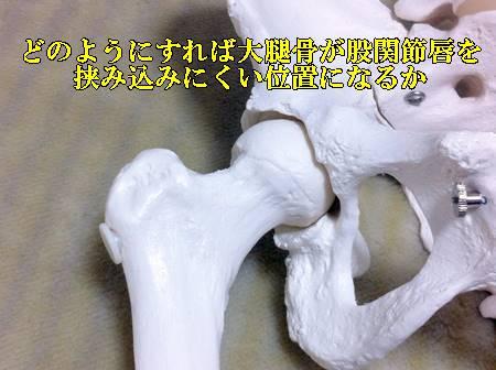 股関節唇損傷はなぜ起こる?痛みの原因と治療方法をご紹介3