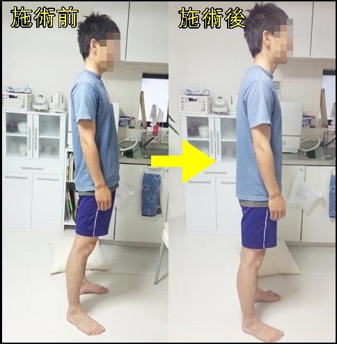 アスリートの腸腰筋の痛み 改善はやっぱり立位から10