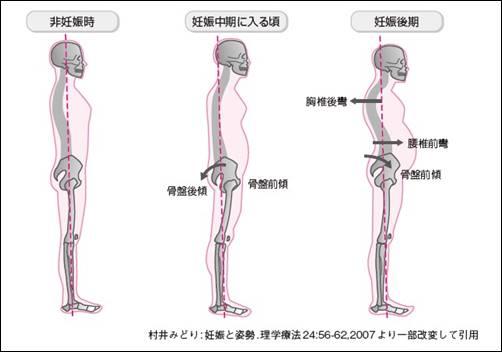 妊娠中の股関節痛や腰痛の原因は?2