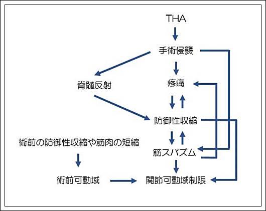 人工股関節置換術後の関節可動域制限の原因4