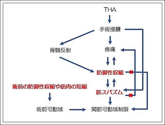 人工股関節置換術後の関節可動域制限の原因2
