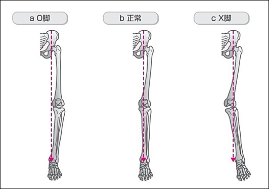 ミクリッツ線ミクリッツライン下肢機能軸