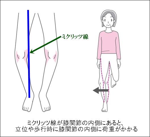 ミクリッツ線と膝OAやO脚との関係は測定方法を知れば理解できる2