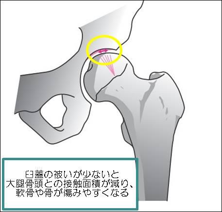 臼蓋形成不全症状2