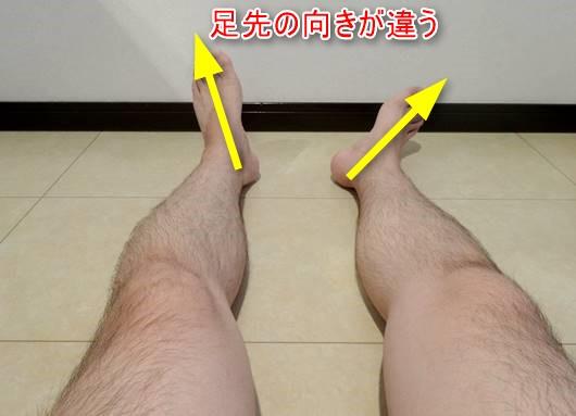 腓骨神経麻痺原因股関節外旋2