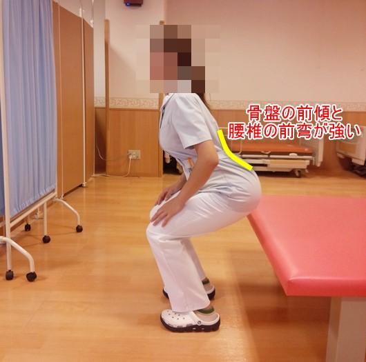 しゃがむと股関節が痛い!その原因はどこにある?10