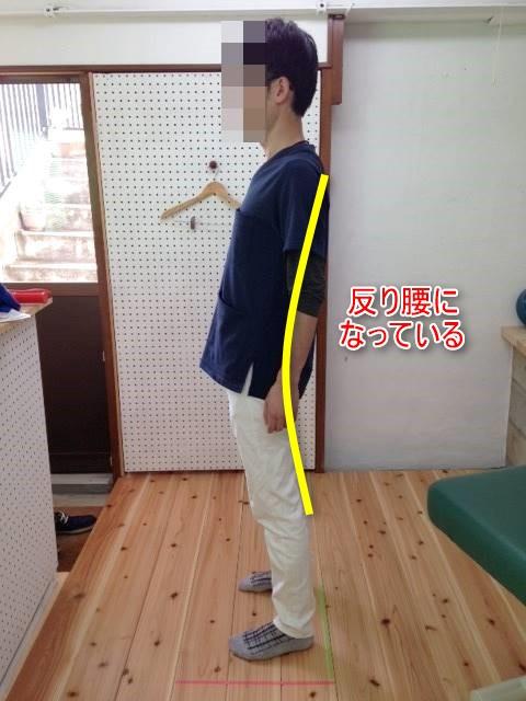 良い姿勢を保つ方法と立位の姿勢観察のポイントを伝授します!2