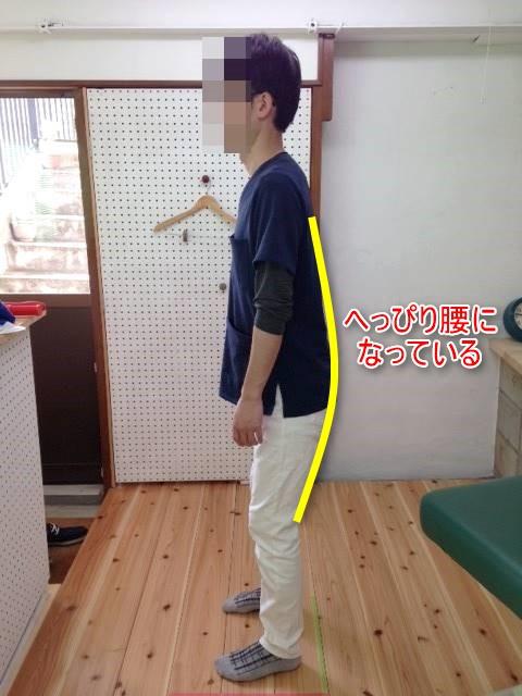 良い姿勢を保つ方法と立位の姿勢観察のポイントを伝授します!1
