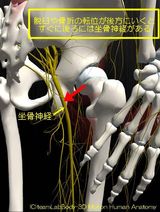 坐骨神経脱臼転位傷つける1