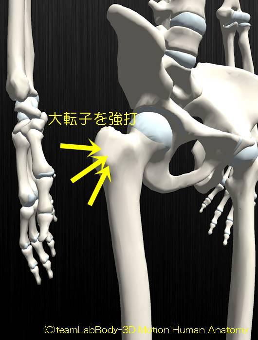 大腿骨頚部骨折原因大転子を強打