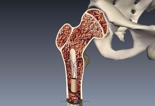 骨粗鬆症大腿骨頚部1