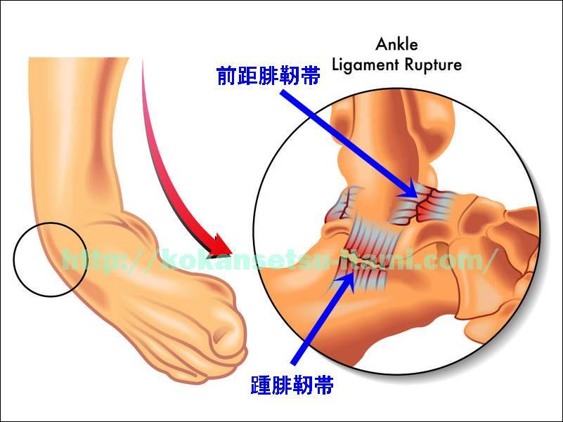 足関節捻挫メカニズム靭帯1