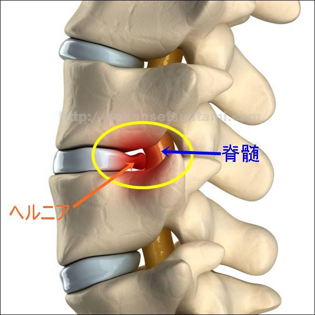 腰椎椎間板ヘルニア脊髄圧迫