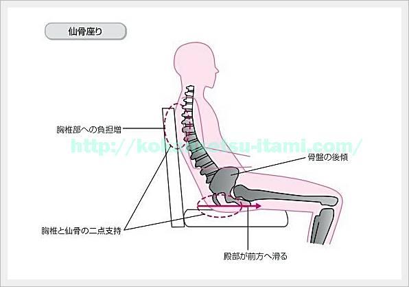仙骨座りイラスト図