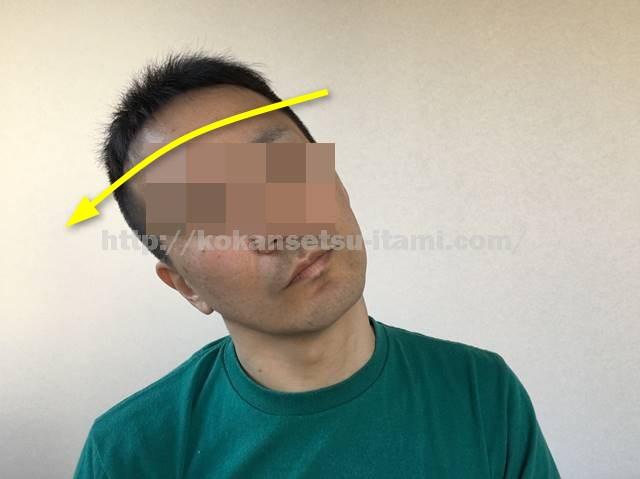 頚部側屈図イラスト1