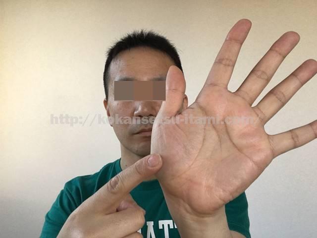 母指球触診イラスト図1